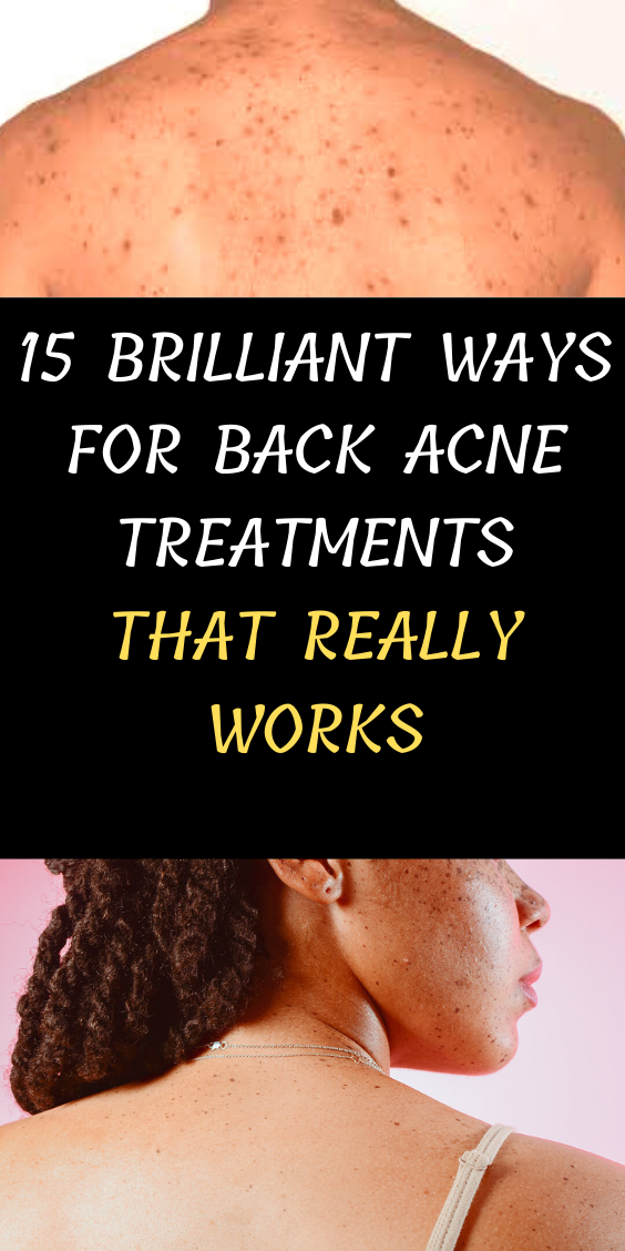 15 Brilliant Ways For Back Acne Treatments That Really Works