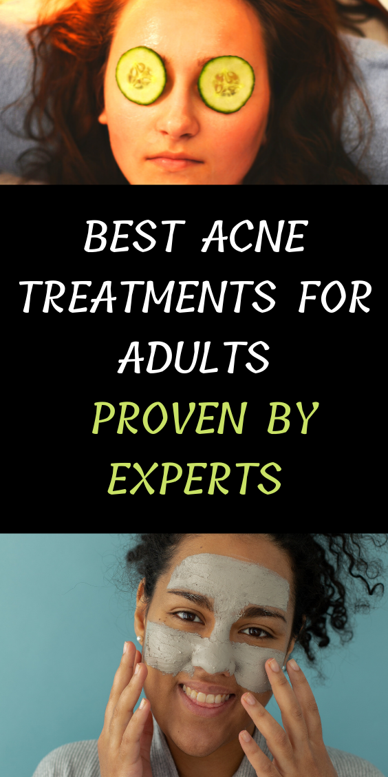 Best Acne Treatments For Adults Proven By Experts