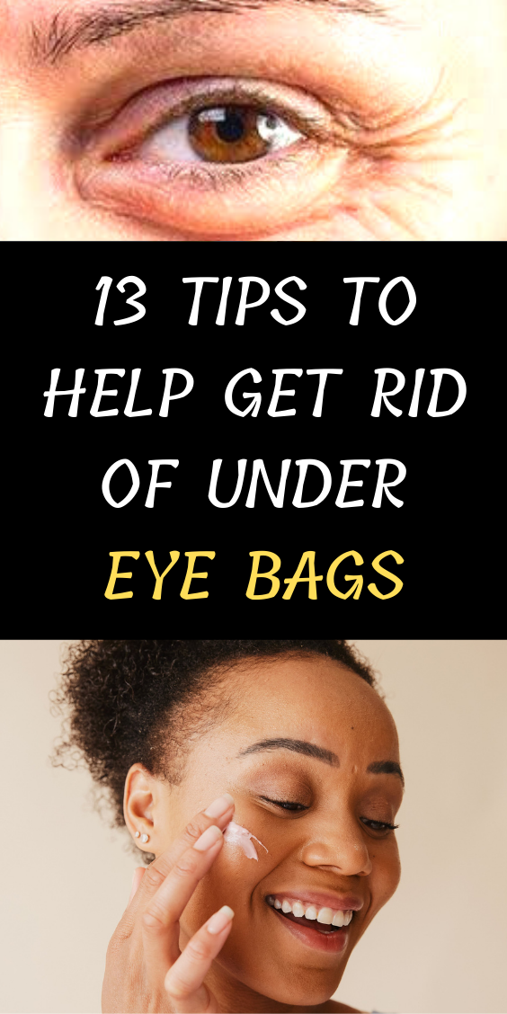 13 Tips To Help Get Rid Of Under-Eye Bags