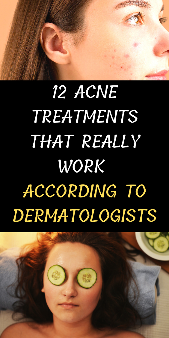 12 Acne Treatments That Really Work According To Dermatologists