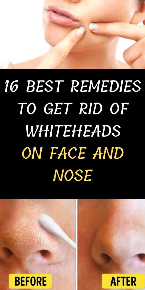 16 Best Remedies To Get Rid Of Whiteheads On Face And Nose