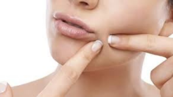 Skin Experts Explain How To Get Rid Of Hormonal Chin Acne
