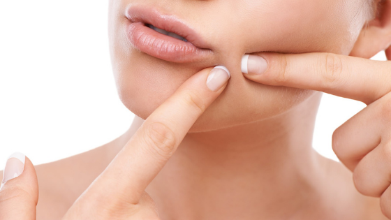 Best Ways On How To Get Rid Of Hard Whiteheads On Face